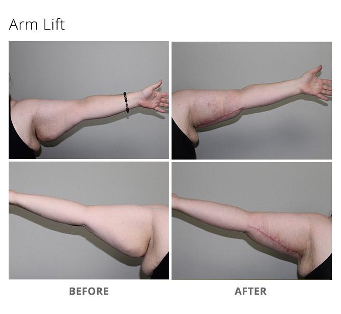 arm lift 8 - Arm Lift