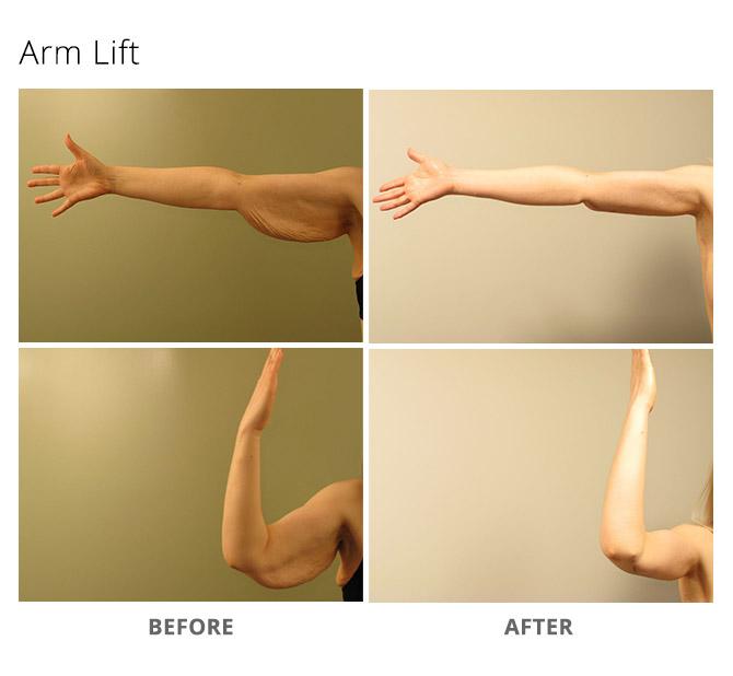arm lift 9 - Arm Lift