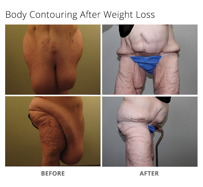body contouring 6 - Body Contouring After Weight Loss