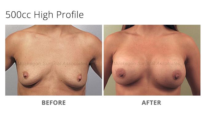 breast augmentation 1 - Breast Augmentation
