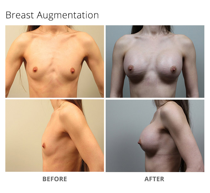 breast augmentation 10 - Breast Augmentation