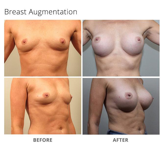 breast augmentation 11 - Breast Augmentation