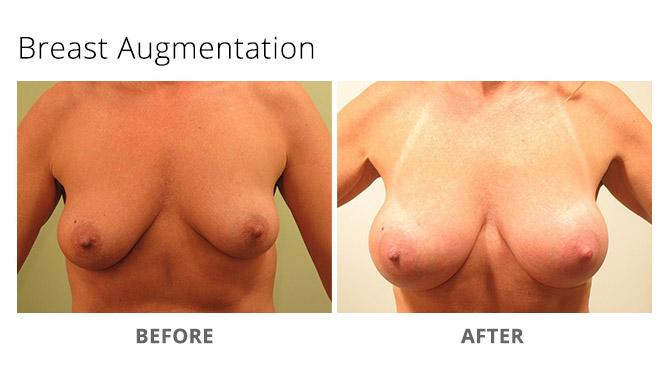 breast augmentation 12 - Breast Augmentation