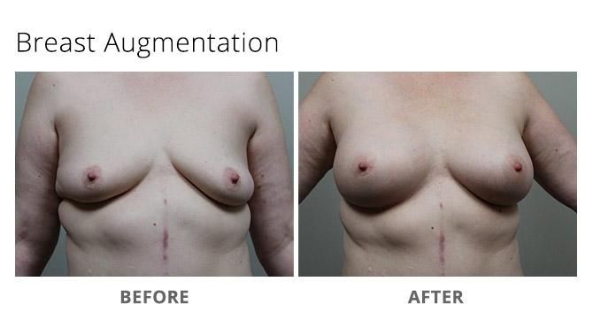 breast augmentation 13 - Breast Augmentation