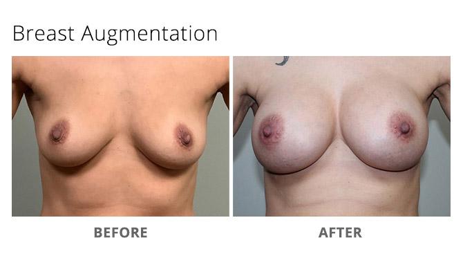 breast augmentation 14 - Breast Augmentation