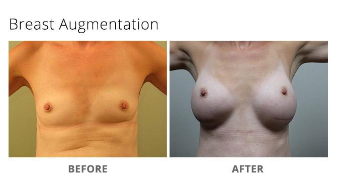 breast augmentation 15 - Breast Augmentation