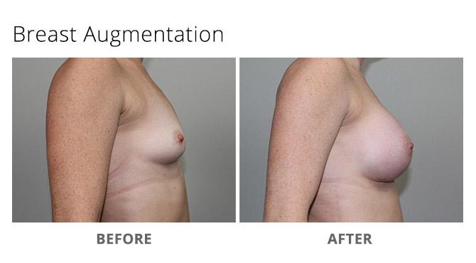 breast augmentation 16 - Breast Augmentation