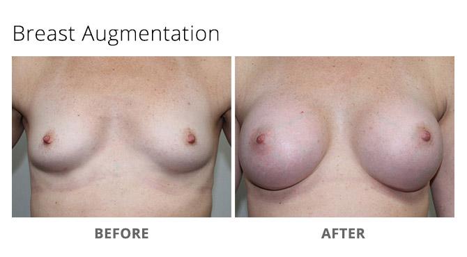 breast augmentation 17 - Breast Augmentation