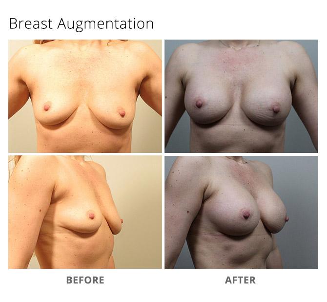 breast augmentation 18 - Breast Augmentation