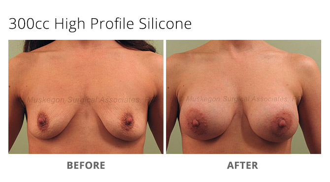 breast augmentation 2 - Breast Augmentation