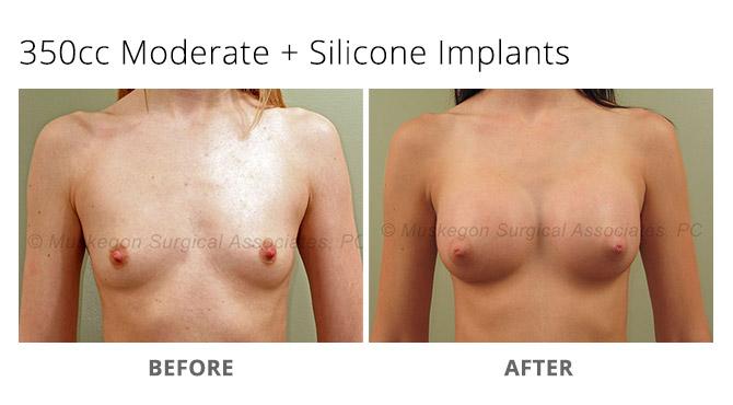 breast augmentation 3 - Breast Augmentation