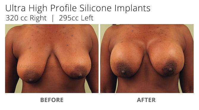 breast augmentation 4 - Breast Augmentation