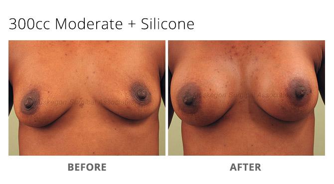 breast augmentation 6 - Breast Augmentation