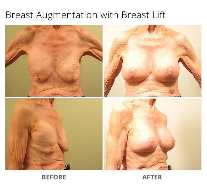 breast augmentation 7 - Breast Augmentation