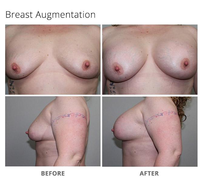 breast augmentation 8 - Breast Augmentation
