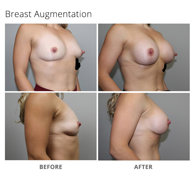 breast augmentation 9 - Breast Augmentation