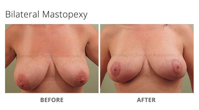 breast lift 1 - Breast Lift