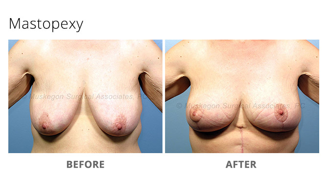breast lift 2 - Breast Lift