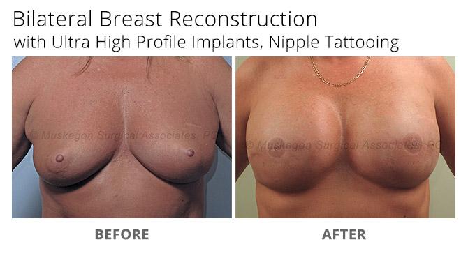 breast reconstruction 1 - Breast Reconstruction