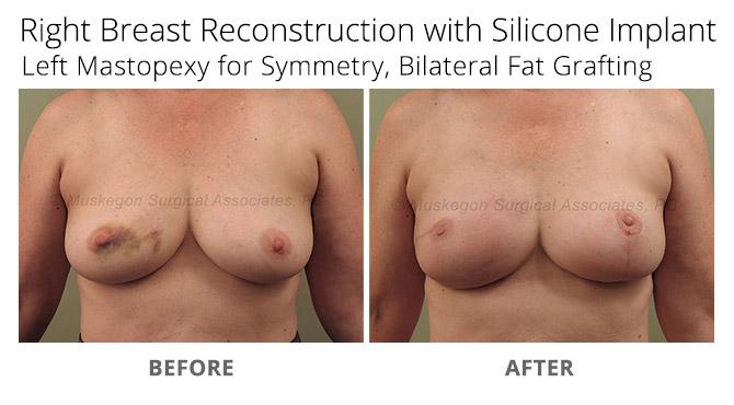breast reconstruction 2 - Breast Reconstruction