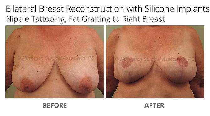 breast reconstruction 3 - Breast Reconstruction