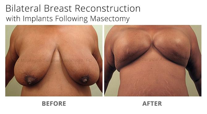 breast reconstruction 4 - Breast Reconstruction
