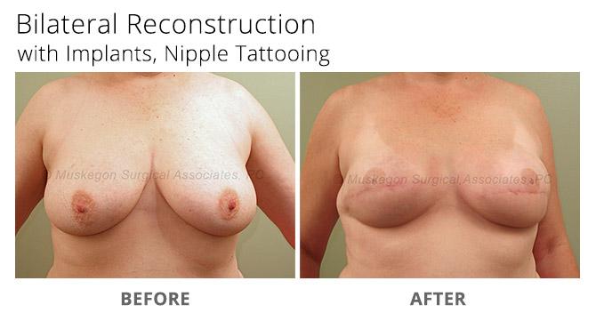 breast reconstruction 5 - Breast Reconstruction
