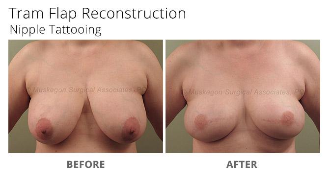 breast reconstruction 6 - Breast Reconstruction