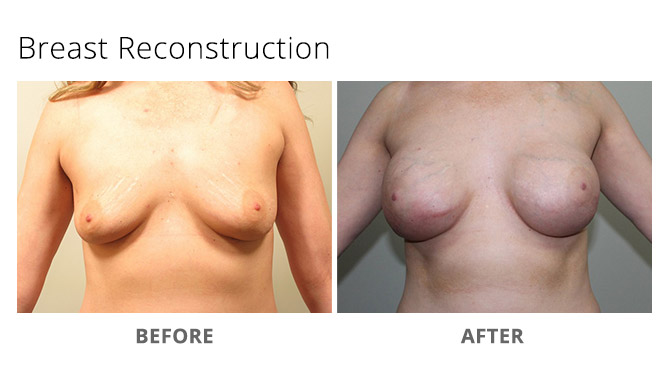 breast reconstruction 7 - Breast Reconstruction