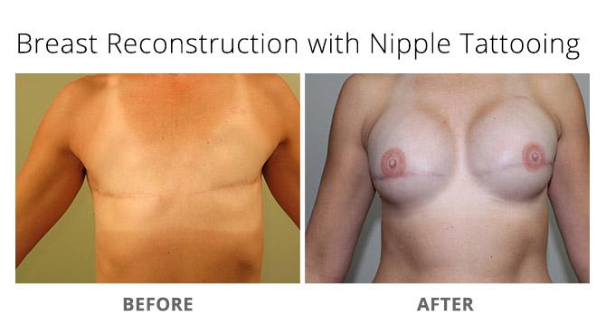 breast reconstruction 8 - Breast Reconstruction