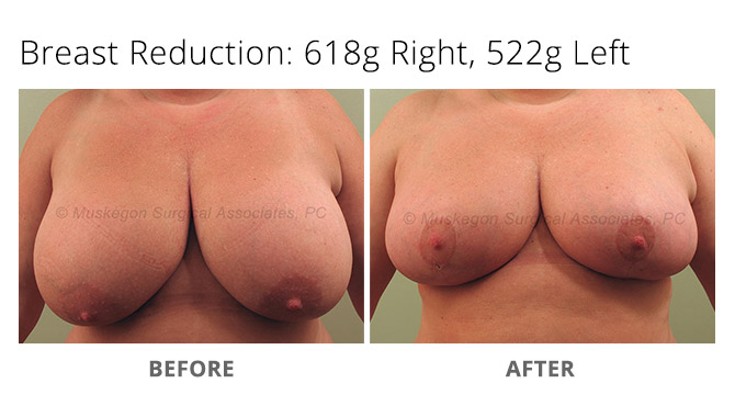 breast reduction 1 - Breast Reduction