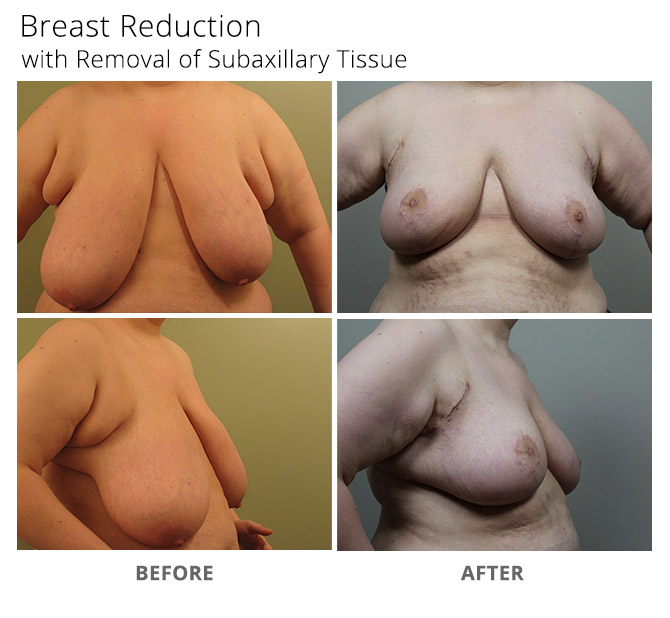 breast reduction 10 - Breast Reduction