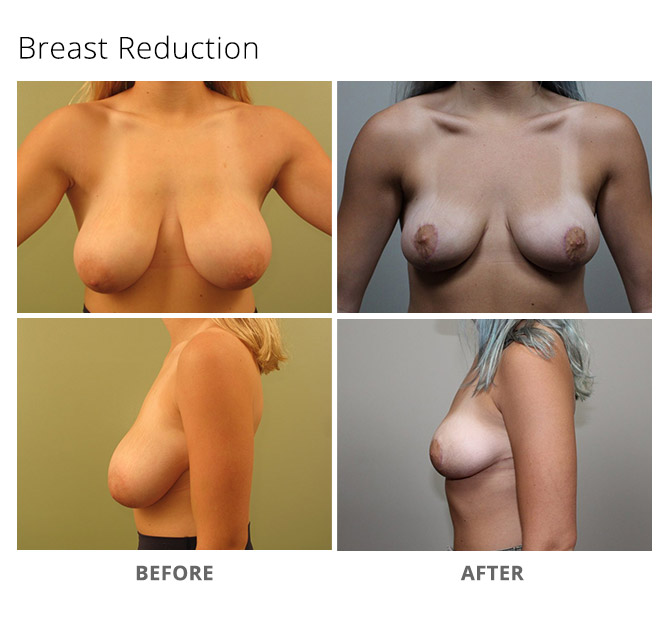 breast reduction 11 - Breast Reduction