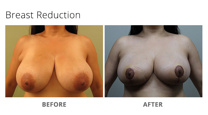 breast reduction 12 - Breast Reduction