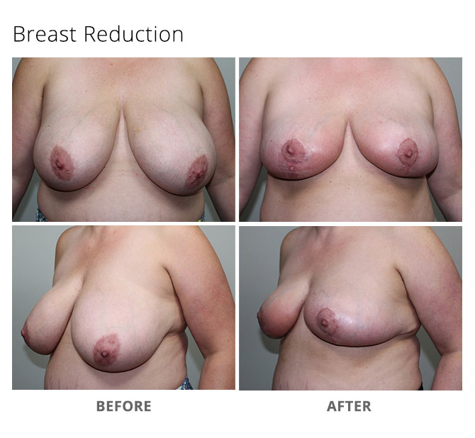 breast reduction 13 - Breast Reduction