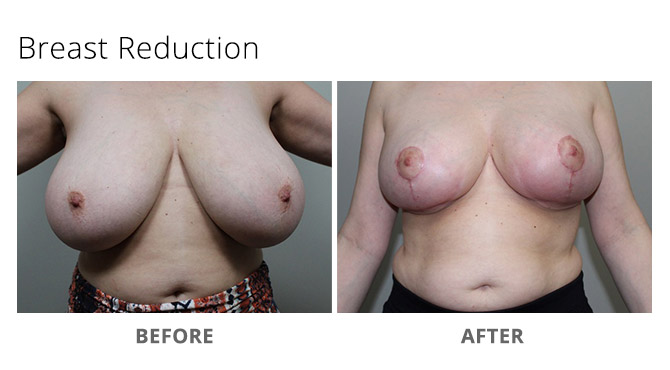 breast reduction 14 - Breast Reduction
