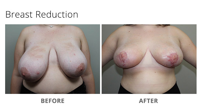 breast reduction 15 - Breast Reduction