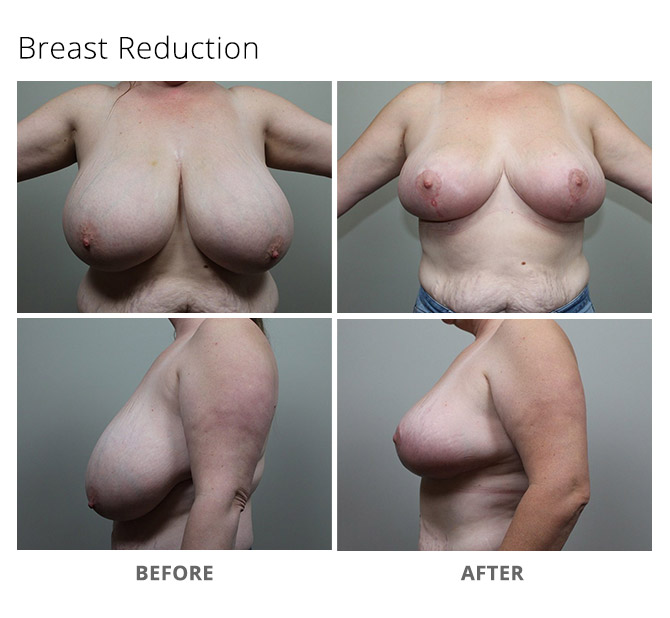 breast reduction 16 - Breast Reduction