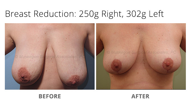 breast reduction 2 - Breast Reduction