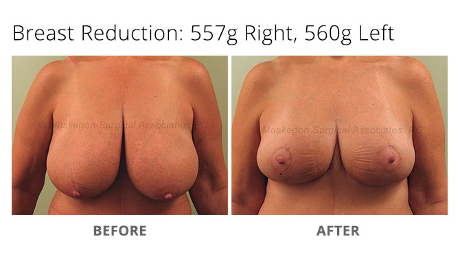 breast reduction 3 - Breast Reduction