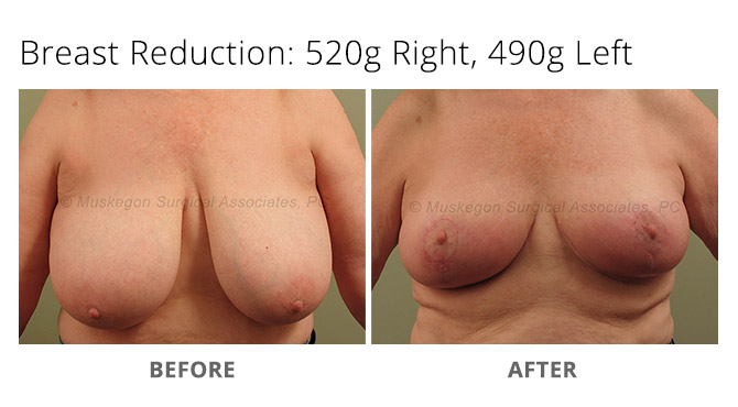 breast reduction 4 - Breast Reduction