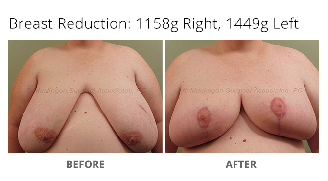 breast reduction 6 - Breast Reduction