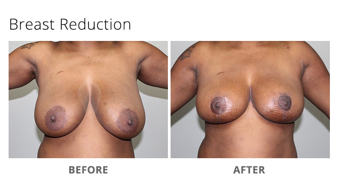 breast reduction 7 - Breast Reduction