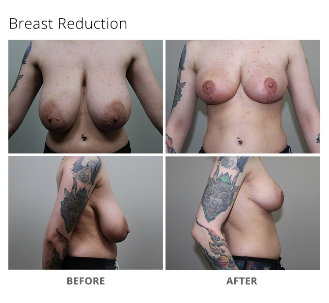 breast reduction 9 - Breast Reduction