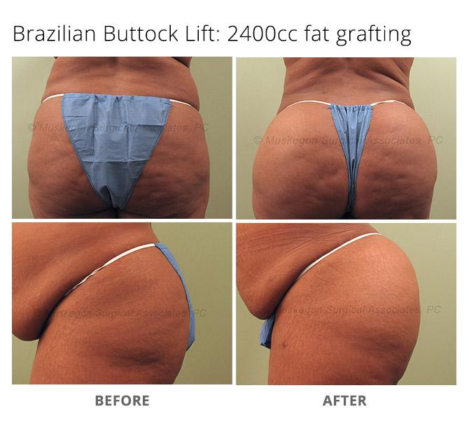 buttock lift 1 - Buttock Augmentation