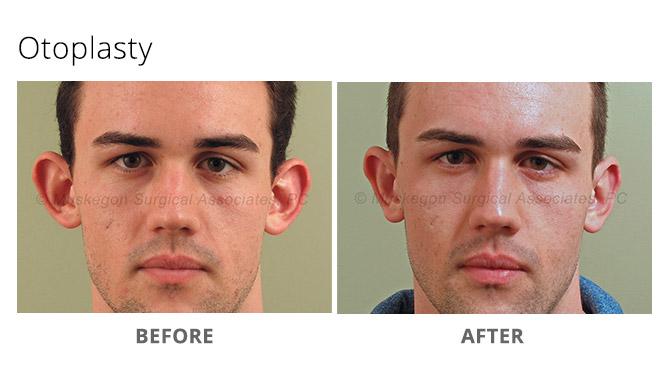 ear reshaping 1 - Ear Reshaping