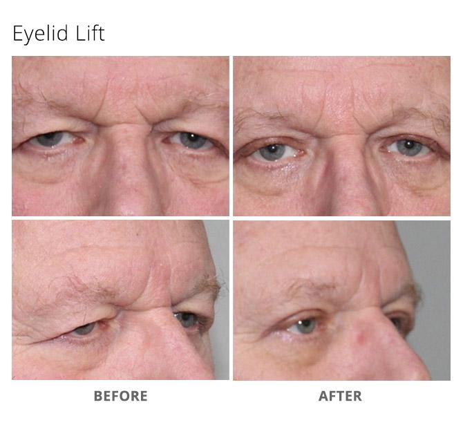 eyelid lift 12 - Eyelid Lift