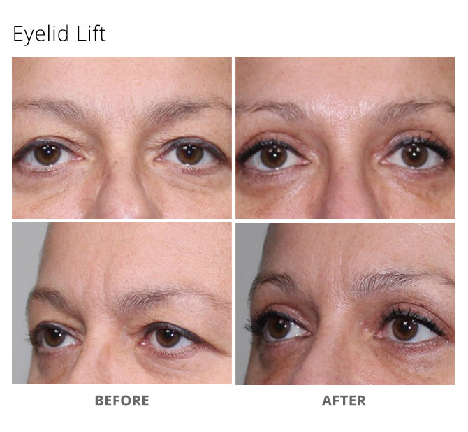eyelid lift 13 - Eyelid Lift