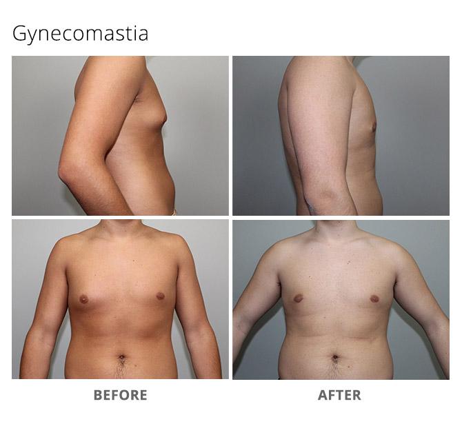 gynecomastia 2 - Gynecomastia