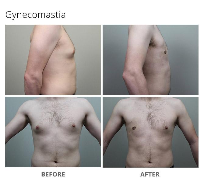 gynecomastia 3 - Gynecomastia